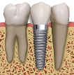 implant in mexico with crown